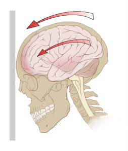 Photo credit: http://en.wikipedia.org/wiki/File:Concussion_mechanics.svg